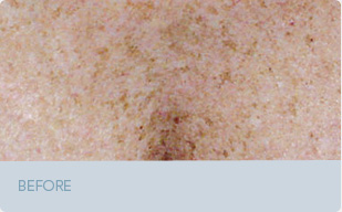 brown spots sun damage barba dermatology
